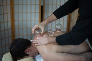 receiving cupping treatment